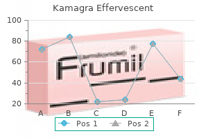 purchase 100mg kamagra effervescent visa